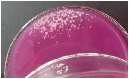 霉菌和酵母计数新标准霉菌培养容易污染解决方法
